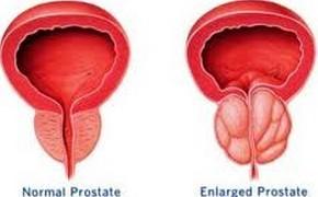 前列腺囊肿注意事项有哪些