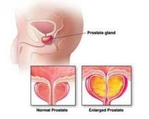 做完前列腺囊肿手术要怎么护理