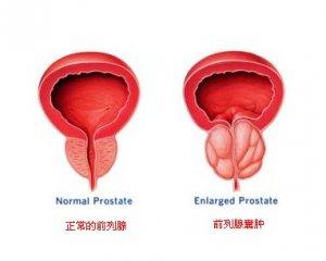 前列腺囊肿患者怎样保养