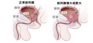 在临床上前列腺增生有怎样表现