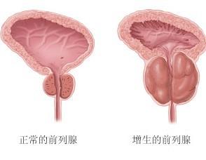 何护理是前列腺增生患者要做