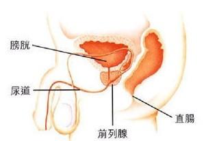 何食物对前列腺结石恢复有利