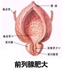 何习惯会导致前列腺肥大加重