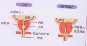 前列腺肥大患者要注意什么